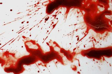 limpiezas forenses de sangre